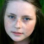 freckle-face-765622_1920