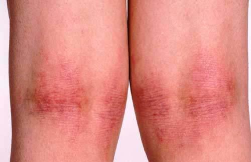 Dermatitis (Parte I)